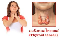 Thyroid02